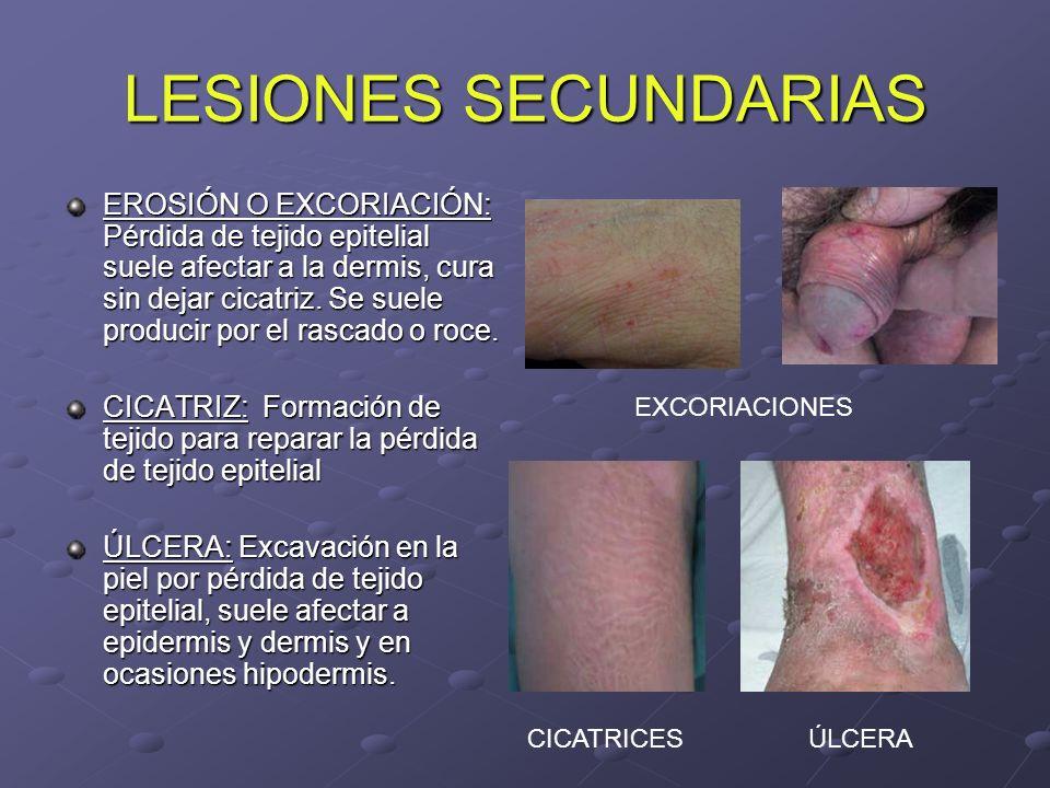 LESIONES SECUNDARIAS EROSIÓN O EXCORIACIÓN: Pérdida de tejido epitelial suele afectar a la dermis, cura sin dejar cicatriz. Se suele producir por el r