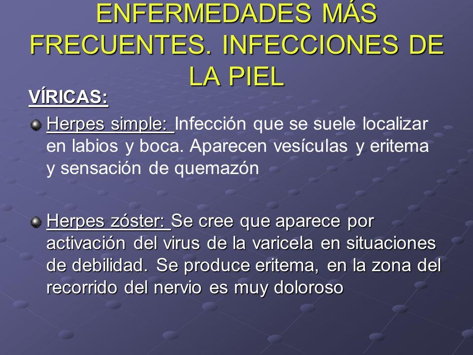 ENFERMEDADES MÁS FRECUENTES. INFECCIONES DE LA PIEL VÍRICAS: Herpes simple: Herpes simple: Infección que se suele localizar en labios y boca. Aparecen