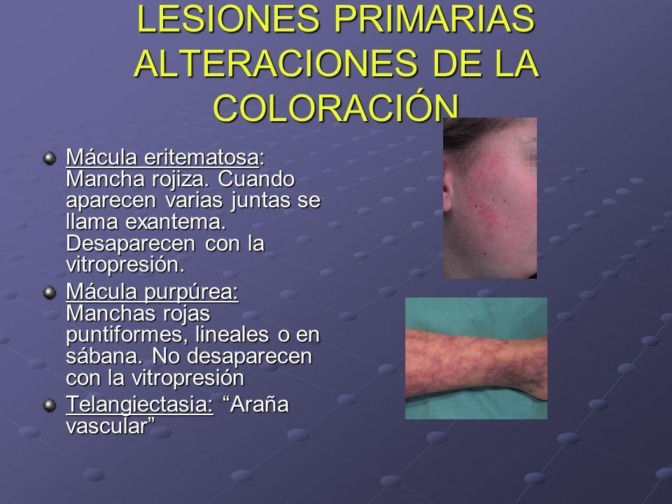 LESIONES PRIMARIAS ALTERACIONES DE LA COLORACIÓN Mácula eritematosa: Mancha rojiza. Cuando aparecen varias juntas se llama exantema. Desaparecen con l