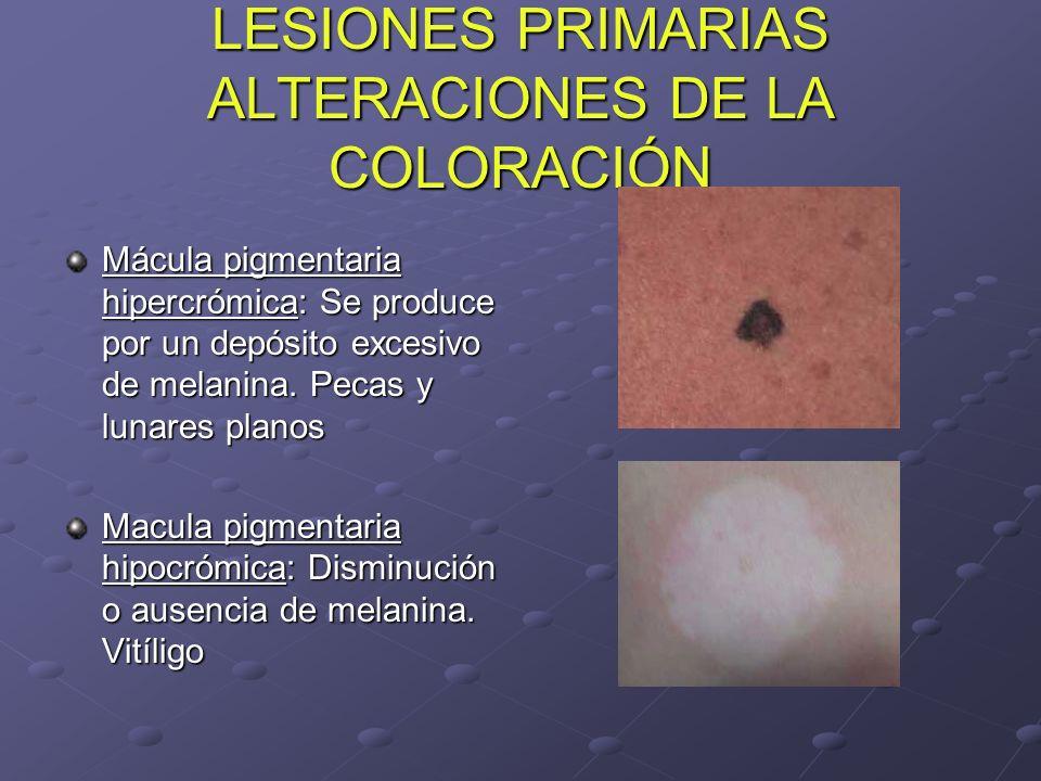 LESIONES PRIMARIAS ALTERACIONES DE LA COLORACIÓN Mácula pigmentaria hipercrómica: Se produce por un depósito excesivo de melanina. Pecas y lunares pla