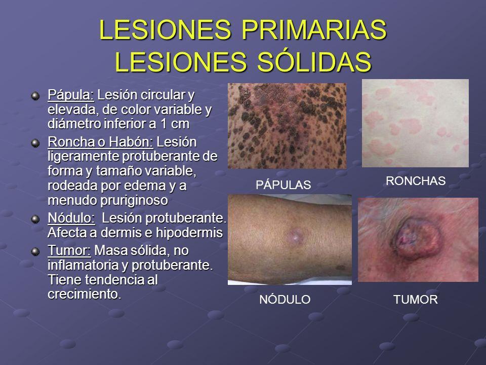 LESIONES PRIMARIAS LESIONES DE CONTENIDO LÍQUIDO Vesícula: Elevación de la epidermis con líquido transparente Ampolla.