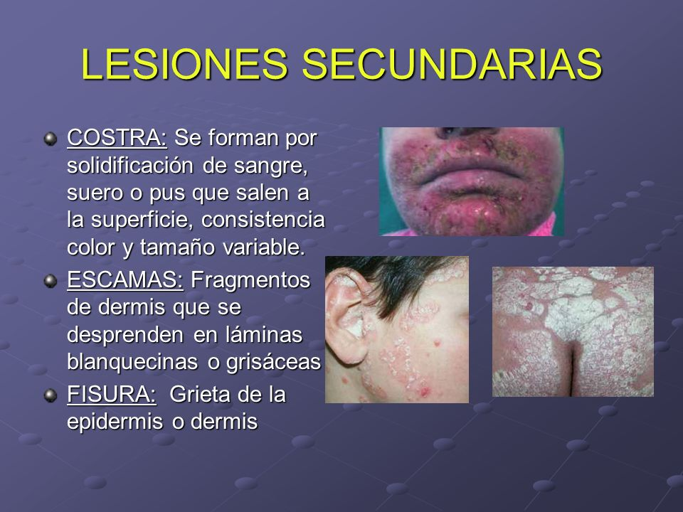 LESIONES SECUNDARIAS COSTRA: Se forman por solidificación de sangre, suero o pus que salen a la superficie, consistencia color y tamaño variable. ESCA