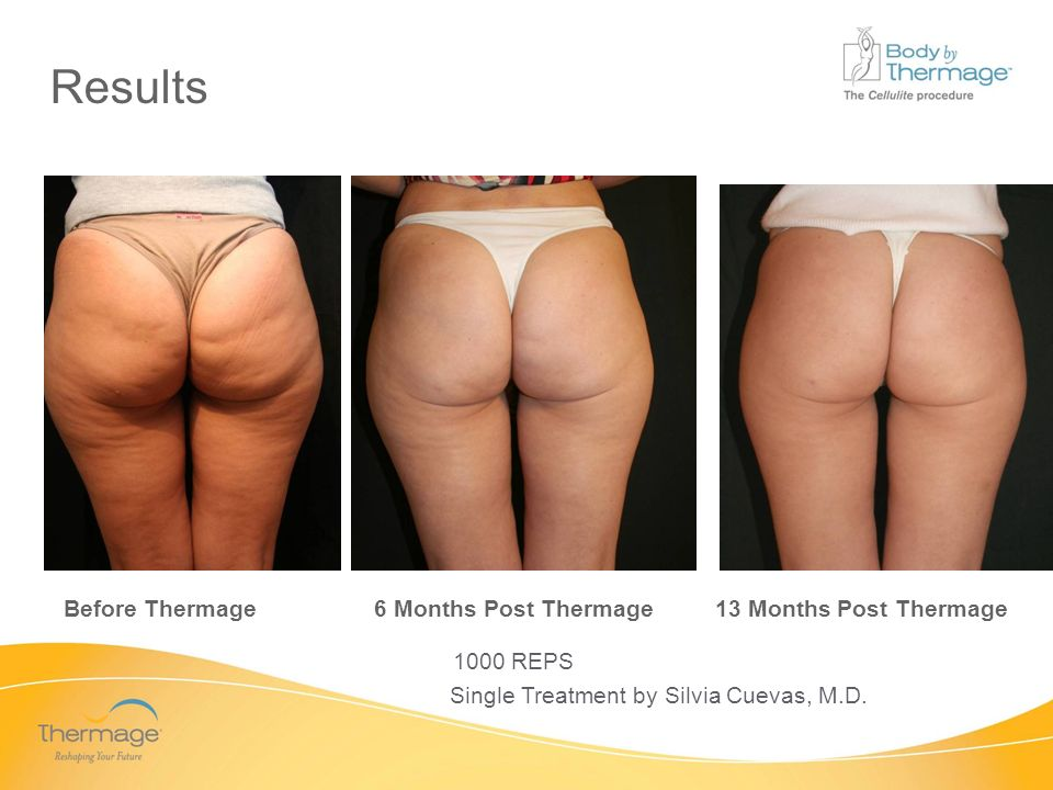 Confidential Before Thermage 6 Months Post Thermage 13 Months Post Thermage 1000 REPS Single Treatment by Silvia Cuevas, M.D. Results