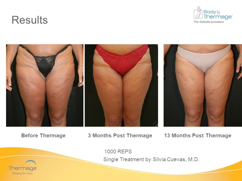 Confidential Before Thermage 3 Months Post Thermage 13 Months Post Thermage 1000 REPS Single Treatment by Silvia Cuevas, M.D. Results
