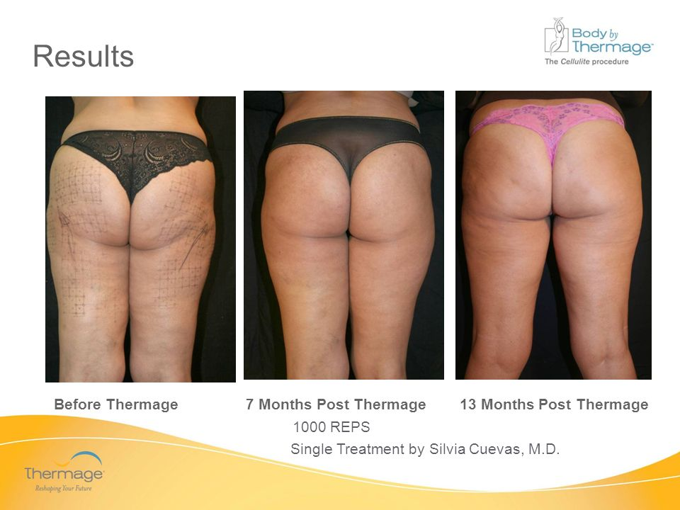 Confidential Results Before Thermage 7 Months Post Thermage 13 Months Post Thermage Single Treatment by Silvia Cuevas, M.D. 1000 REPS