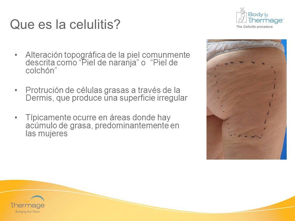 Confidential Que es la celulitis? Alteración topográfica de la piel comunmente descrita como Piel de naranja o Piel de colchón Protrución de células g