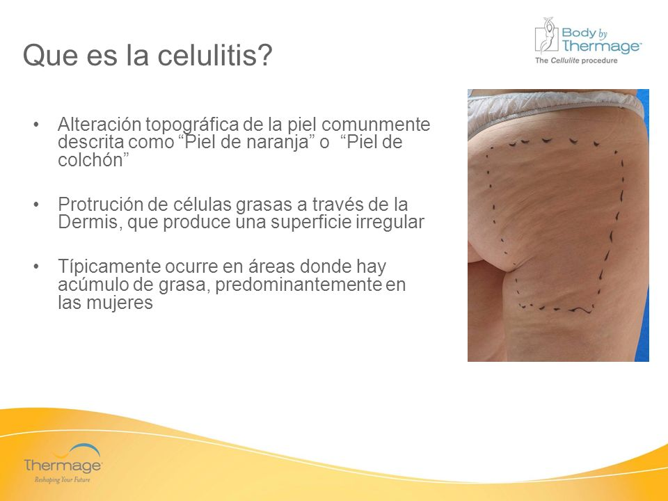 Confidential Que causa celulitis.