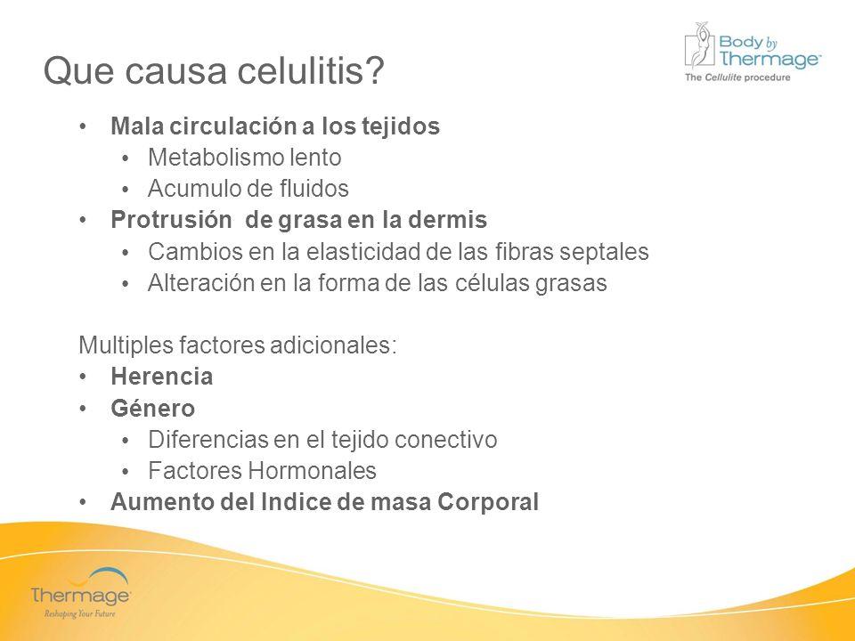 Confidential Que causa celulitis? Mala circulación a los tejidos Metabolismo lento Acumulo de fluidos Protrusión de grasa en la dermis Cambios en la e