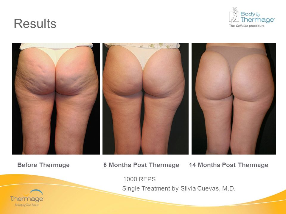 Confidential Before Thermage 6 Months Post Thermage14 Months Post Thermage Single Treatment by Silvia Cuevas, M.D. 1000 REPS Results