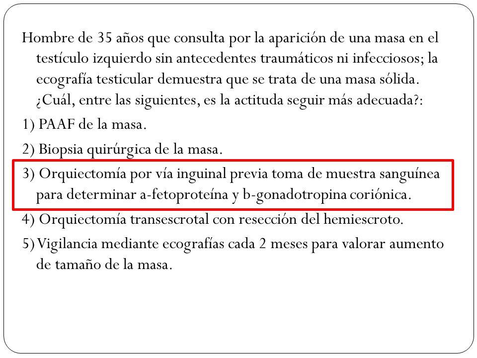 Hombre de 35 años que consulta por la aparición de una masa en el testículo izquierdo sin antecedentes traumáticos ni infecciosos; la ecografía testic