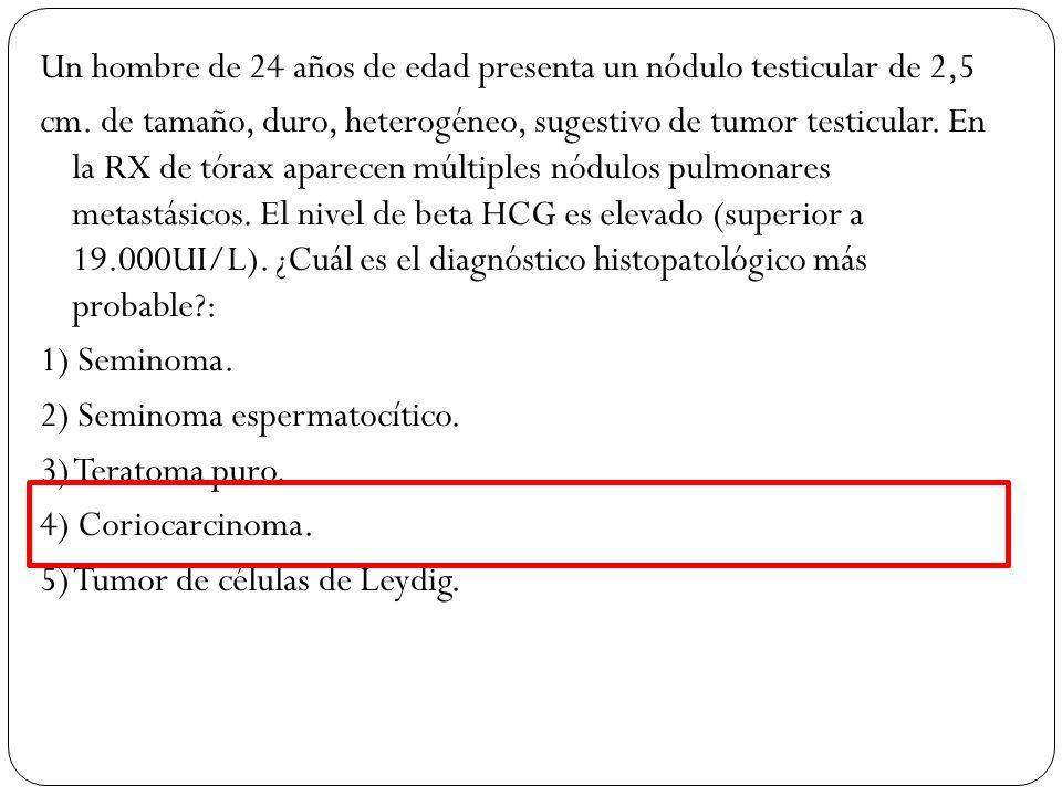 Un hombre de 24 años de edad presenta un nódulo testicular de 2,5 cm. de tamaño, duro, heterogéneo, sugestivo de tumor testicular. En la RX de tórax a