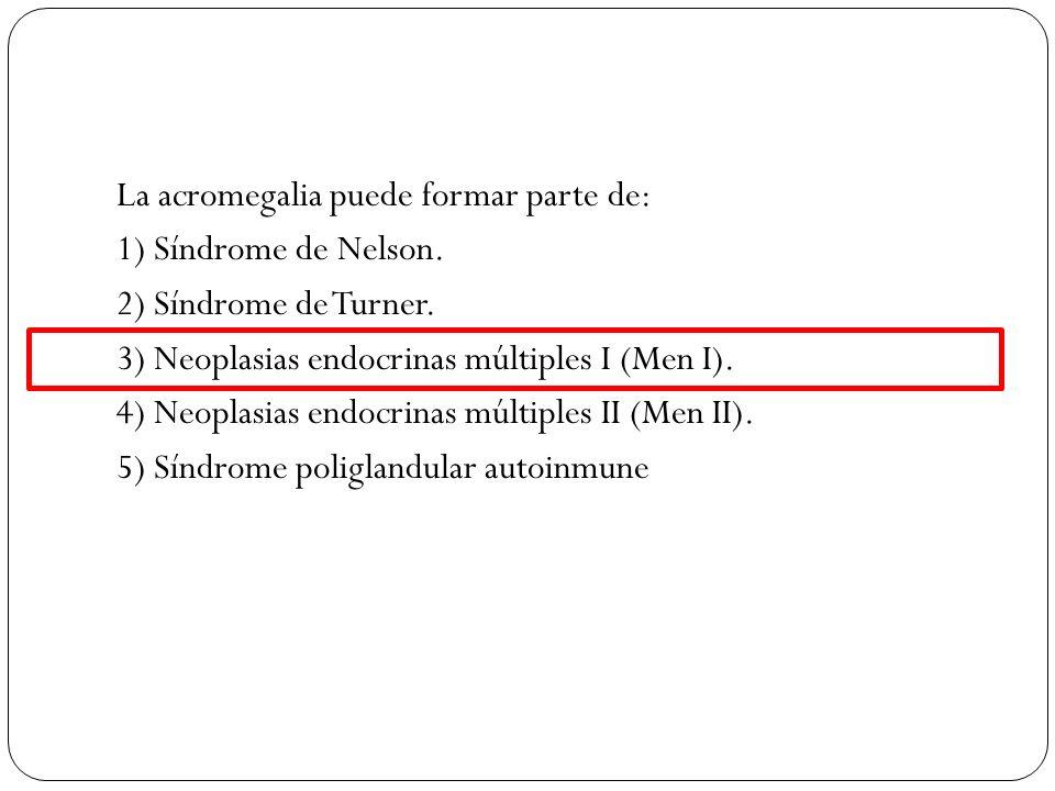 La acromegalia puede formar parte de: 1) Síndrome de Nelson. 2) Síndrome de Turner. 3) Neoplasias endocrinas múltiples I (Men I). 4) Neoplasias endocr