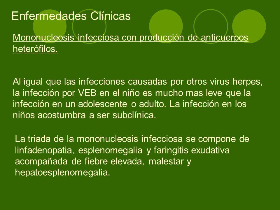 Mononucleosis infecciosa con producción de anticuerpos heterófilos. Al igual que las infecciones causadas por otros virus herpes, la infección por VEB