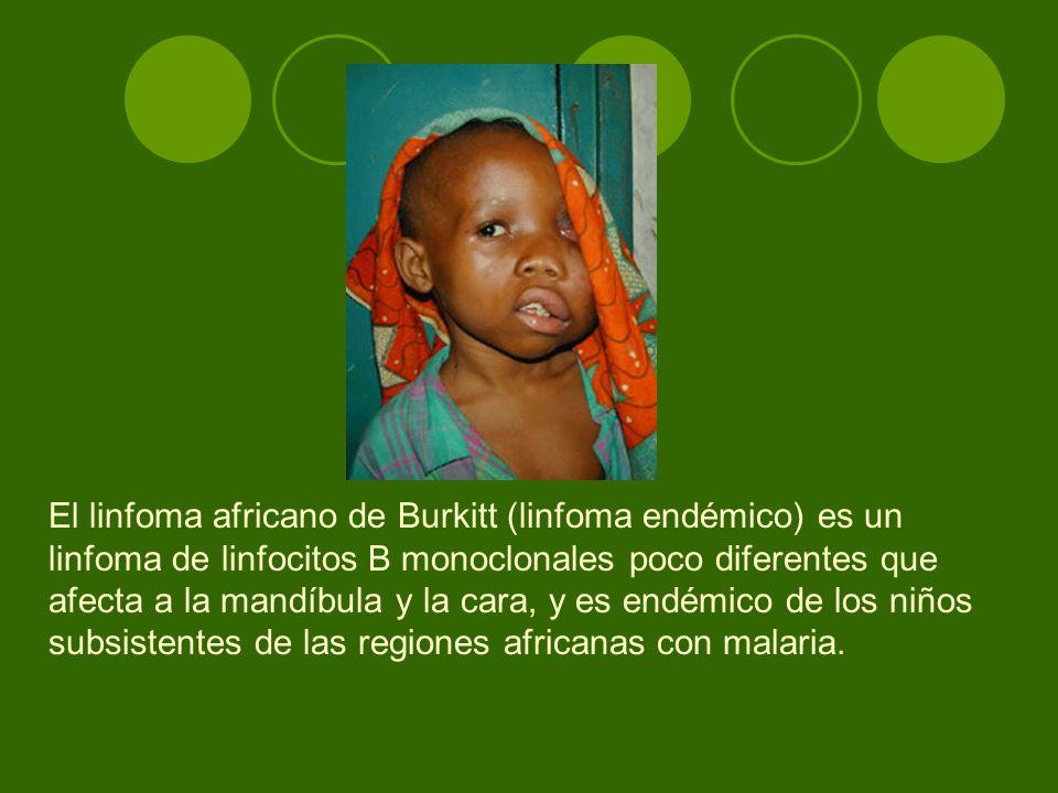 El linfoma africano de Burkitt (linfoma endémico) es un linfoma de linfocitos B monoclonales poco diferentes que afecta a la mandíbula y la cara, y es