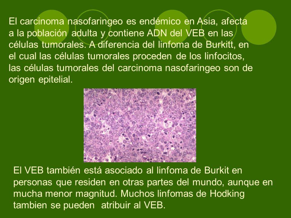 El carcinoma nasofaringeo es endémico en Asia, afecta a la población adulta y contiene ADN del VEB en las células tumorales. A diferencia del linfoma