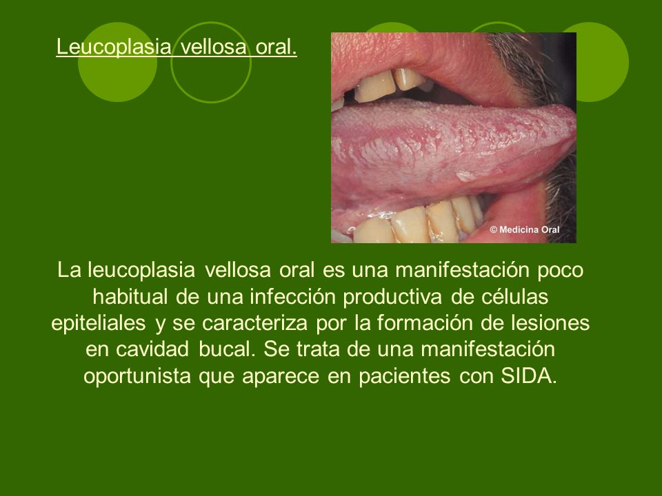 La leucoplasia vellosa oral es una manifestación poco habitual de una infección productiva de células epiteliales y se caracteriza por la formación de