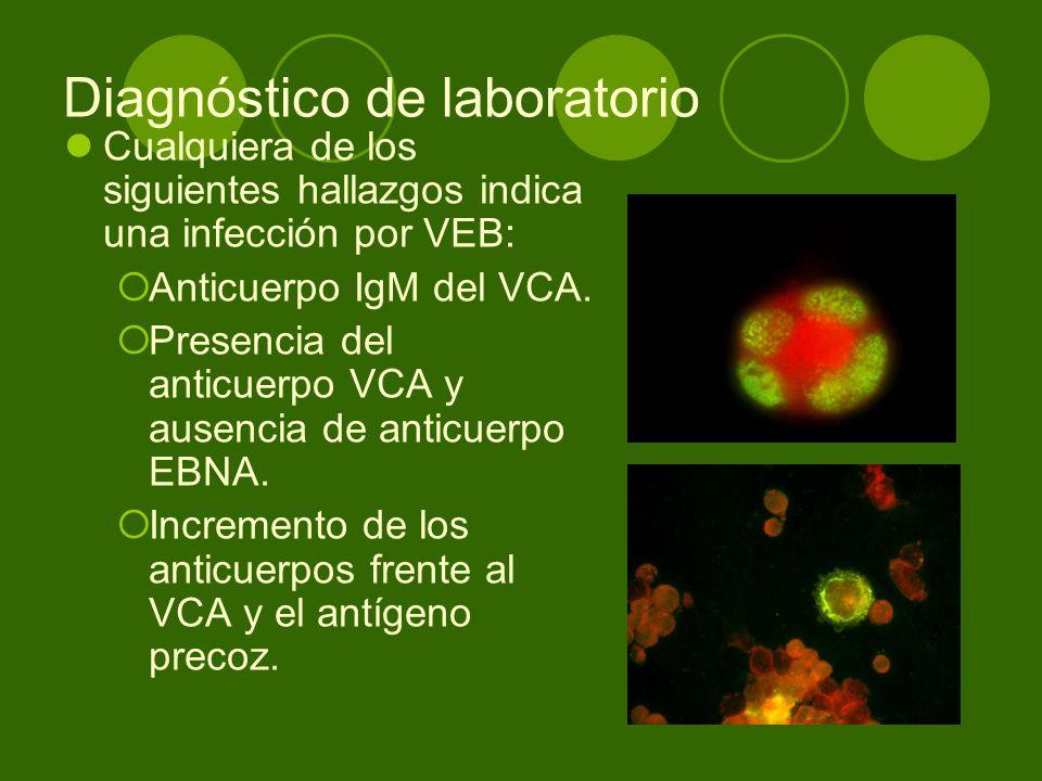 Diagnóstico de laboratorio Cualquiera de los siguientes hallazgos indica una infección por VEB: Anticuerpo IgM del VCA. Presencia del anticuerpo VCA y