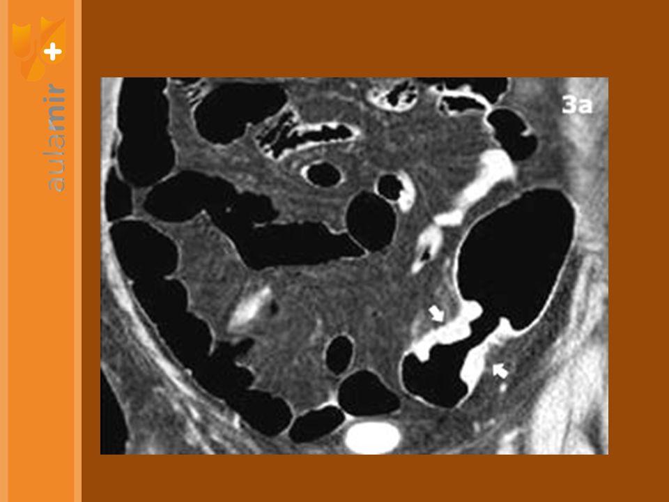 ALIENTO CON UREA SEROLOGÍA ANTÍGENO FECAL Detectar infección sin endoscopia ENDOSCOPIA CULTIVO-BIOPSIA O UREASA Sospecha de úlcera ENDOSCOPIA (SI NECESARIA) ALIENTO O Ag FECAL Demostrar erradicación CAO 7-10-14 DÍAS Tratamiento inicial CUÁDRUPLE O TRIPLE 14 DÍAS CAMBIANDO ANTIBIÓTICOS No responde LAO 14 DÍAS Tampoco ¿QUÉ HACEMOS CON EL HP DEL BICHO?