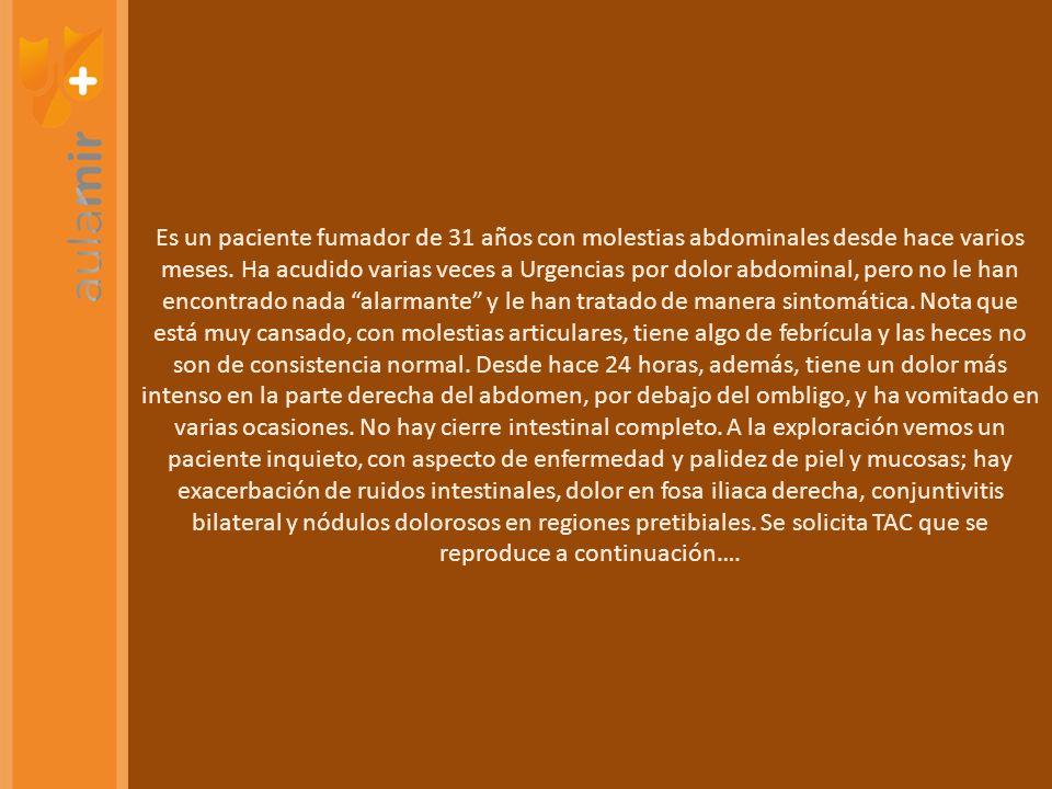 PRUEBA MÁS EFECTIVA EN LA ACALASIA MANOMETRÍA TRATAMIENTO MÁS RESOLUTIVO MIOTOMÍA TRATAMIENTO DEL ANILLO DE SCHATZKI DILATACIÓN ENDOSCÓPICA PRIMERA PRUEBA DIAGNÓSTICO EN EL REFLUJO ENDOSCOPIA (TRATAMIENTO DE PRUEBA ANTES, CLARO) MEJOR PRUEBA PARA CUANTIFICAR EL REFLUJO PHMETRÍA 24 HORAS METAPLASIA INTESTINAL EN UN BARRET.