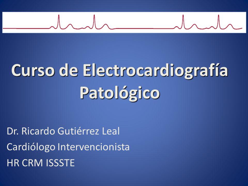 Curso de Electrocardiografía Patológico Dr. Ricardo Gutiérrez Leal Cardiólogo Intervencionista HR CRM ISSSTE