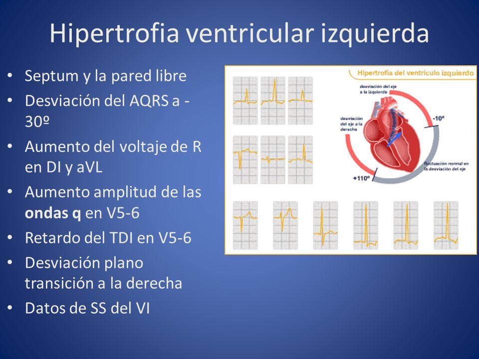 Hipertrofia ventricular izquierda Septum y la pared libre Desviación del AQRS a - 30º Aumento del voltaje de R en DI y aVL Aumento amplitud de las ond