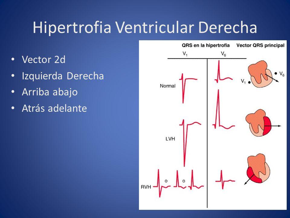 Hipertrofia Ventricular Derecha Vector 2d Izquierda Derecha Arriba abajo Atrás adelante