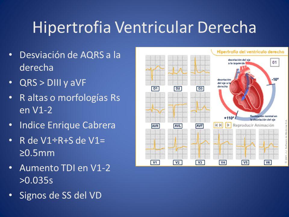 Hipertrofia Ventricular Derecha Desviación de AQRS a la derecha QRS > DIII y aVF R altas o morfologías Rs en V1-2 Indice Enrique Cabrera R de V1÷R+S d