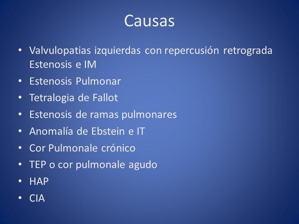 Causas Valvulopatias izquierdas con repercusión retrograda Estenosis e IM Estenosis Pulmonar Tetralogia de Fallot Estenosis de ramas pulmonares Anomal