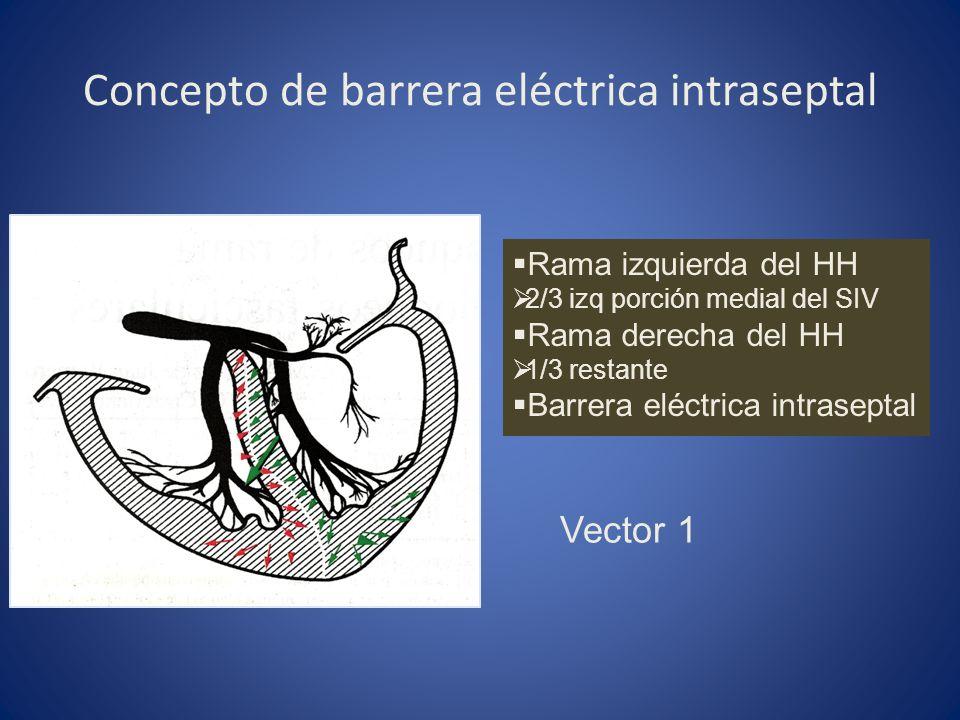 Concepto de barrera eléctrica intraseptal Rama izquierda del HH 2/3 izq porción medial del SIV Rama derecha del HH 1/3 restante Barrera eléctrica intr