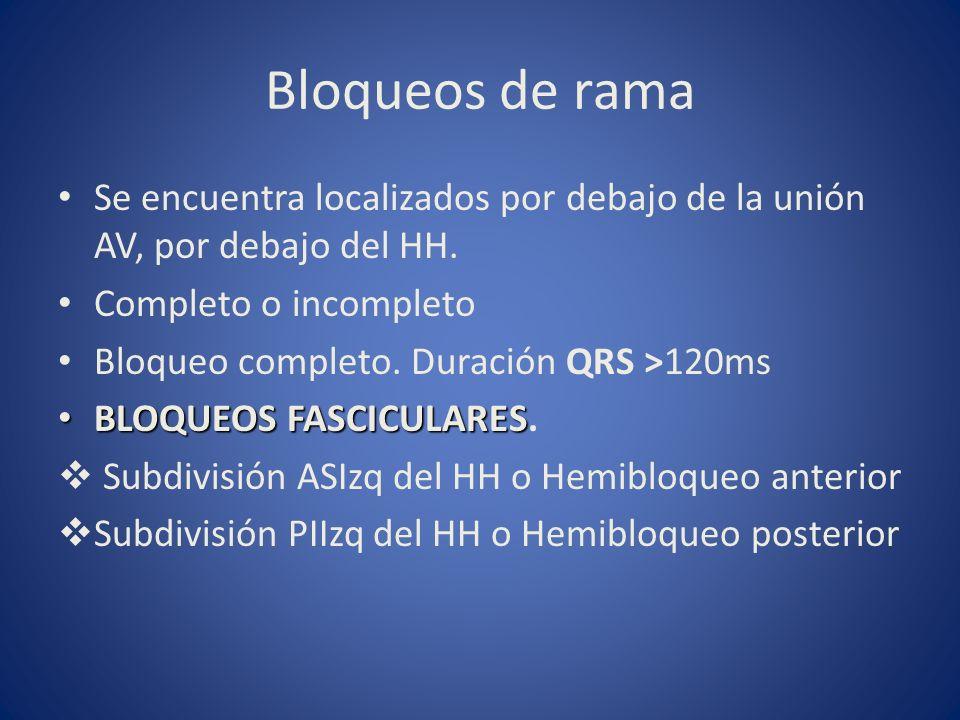 Bloqueos de rama Se encuentra localizados por debajo de la unión AV, por debajo del HH. Completo o incompleto Bloqueo completo. Duración QRS >120ms BL