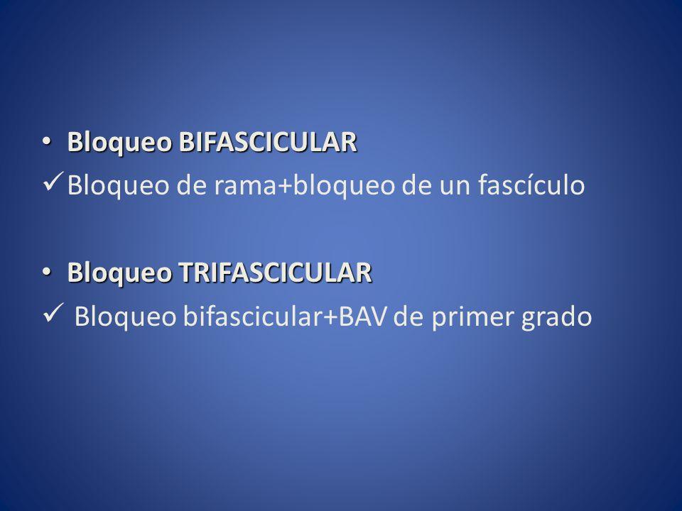 Bloqueo BIFASCICULAR Bloqueo BIFASCICULAR Bloqueo de rama+bloqueo de un fascículo Bloqueo TRIFASCICULAR Bloqueo TRIFASCICULAR Bloqueo bifascicular+BAV