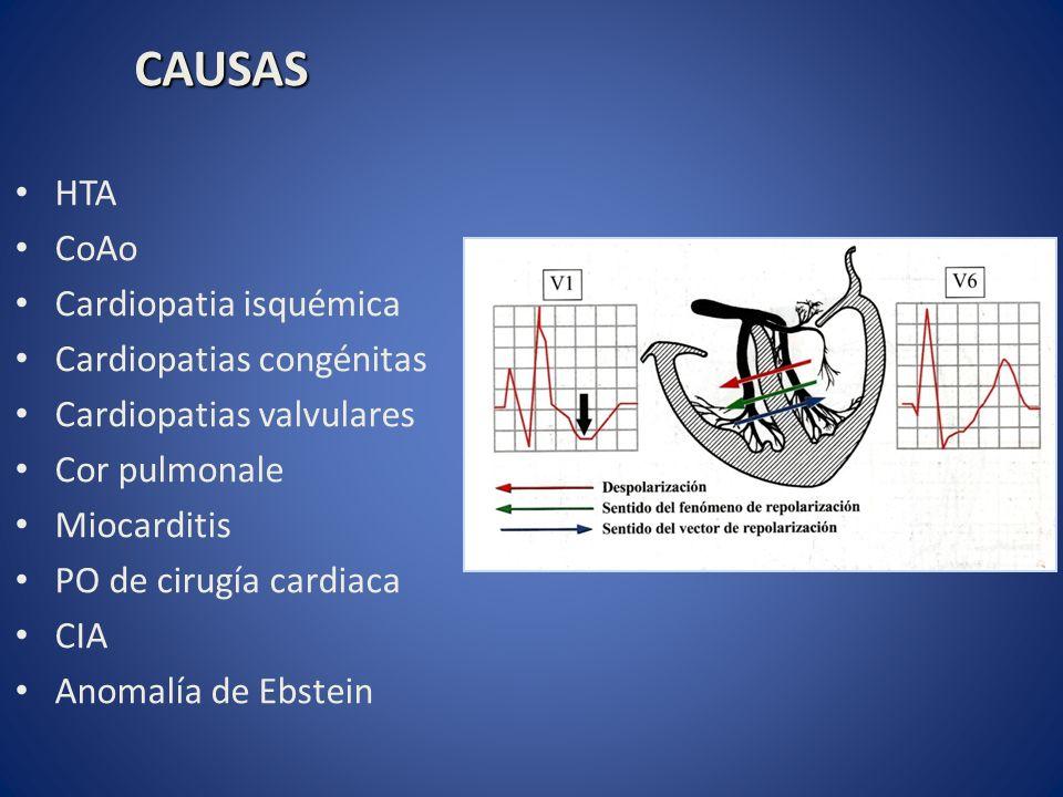 HTA CoAo Cardiopatia isquémica Cardiopatias congénitas Cardiopatias valvulares Cor pulmonale Miocarditis PO de cirugía cardiaca CIA Anomalía de Ebstei