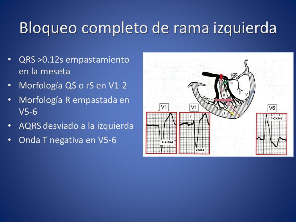 Bloqueo completo de rama izquierda QRS >0.12s empastamiento en la meseta Morfología QS o rS en V1-2 Morfología R empastada en V5-6 AQRS desviado a la