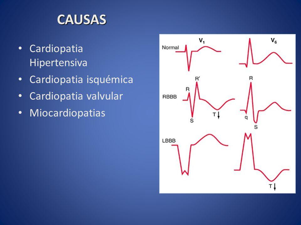Cardiopatia Hipertensiva Cardiopatia isquémica Cardiopatia valvular Miocardiopatias CAUSAS