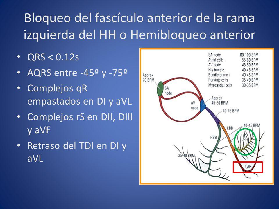 Bloqueo del fascículo anterior de la rama izquierda del HH o Hemibloqueo anterior QRS < 0.12s AQRS entre -45º y -75º Complejos qR empastados en DI y a