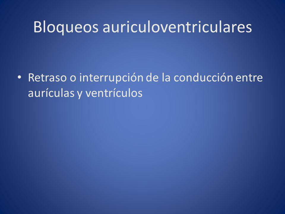 Bloqueos auriculoventriculares Retraso o interrupción de la conducción entre aurículas y ventrículos