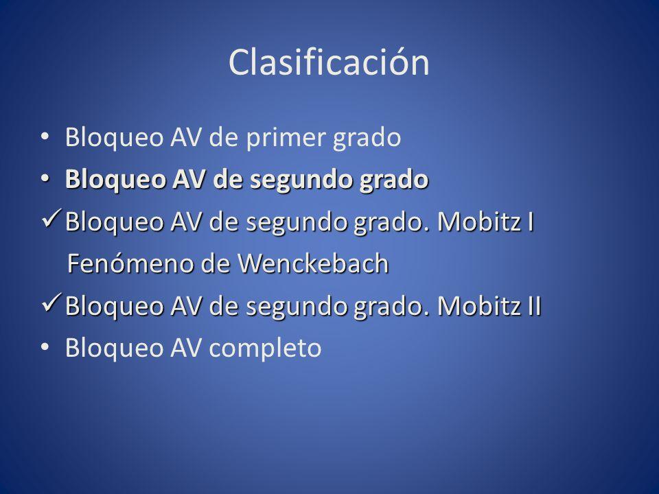 Clasificación Bloqueo AV de primer grado Bloqueo AV de segundo grado Bloqueo AV de segundo grado Bloqueo AV de segundo grado. Mobitz I Bloqueo AV de s