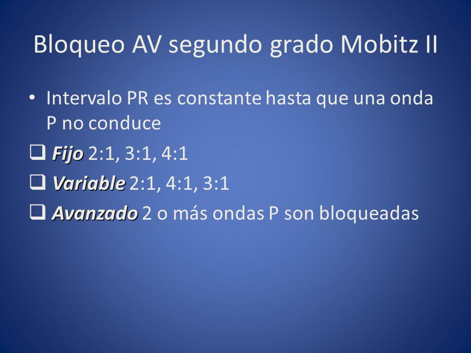 Bloqueo AV segundo grado Mobitz II Intervalo PR es constante hasta que una onda P no conduce Fijo Fijo 2:1, 3:1, 4:1 Variable Variable 2:1, 4:1, 3:1 A