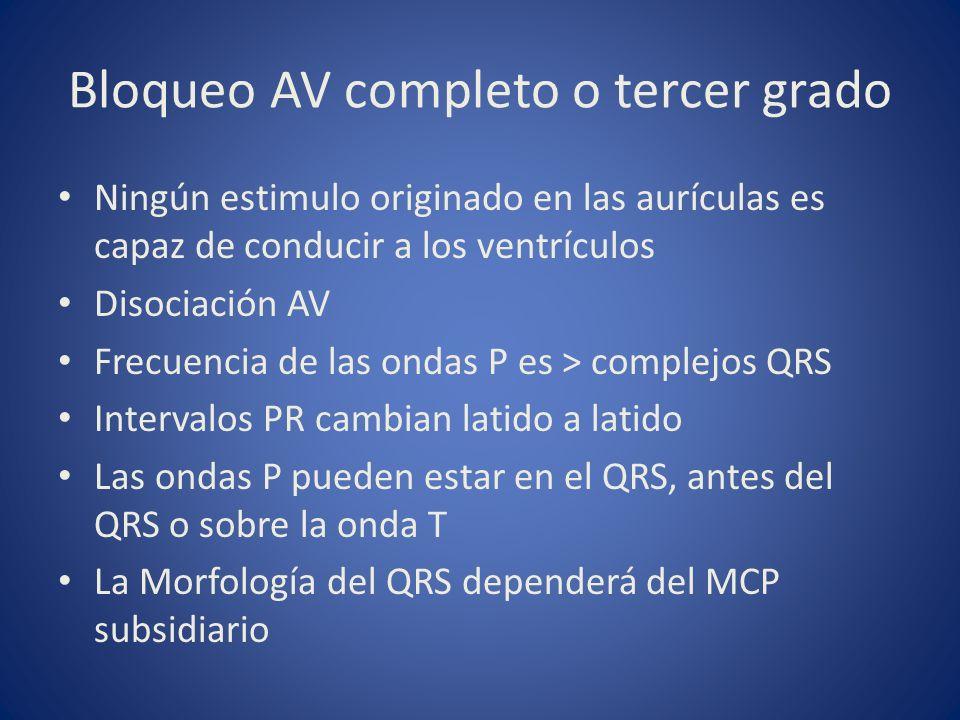 Bloqueo AV completo o tercer grado Ningún estimulo originado en las aurículas es capaz de conducir a los ventrículos Disociación AV Frecuencia de las