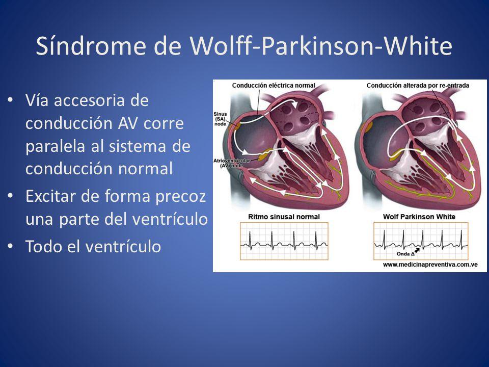 Síndrome de Wolff-Parkinson-White Vía accesoria de conducción AV corre paralela al sistema de conducción normal Excitar de forma precoz una parte del