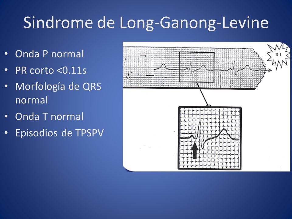 Onda P normal PR corto <0.11s Morfología de QRS normal Onda T normal Episodios de TPSPV Sindrome de Long-Ganong-Levine