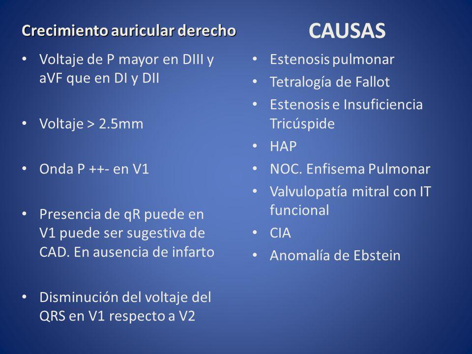 Crecimiento auricular derecho Voltaje de P mayor en DIII y aVF que en DI y DII Voltaje > 2.5mm Onda P ++- en V1 Presencia de qR puede en V1 puede ser