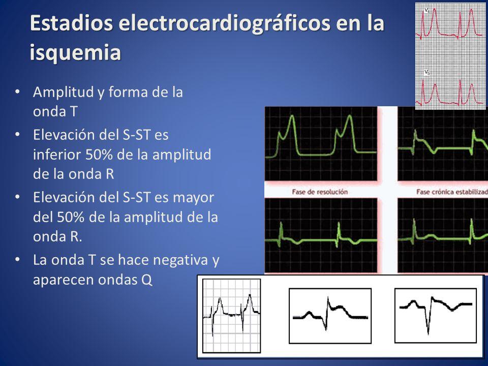 Estadios electrocardiográficos en la isquemia Amplitud y forma de la onda T Elevación del S-ST es inferior 50% de la amplitud de la onda R Elevación d