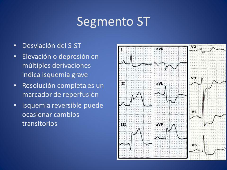 Segmento ST Desviación del S-ST Elevación o depresión en múltiples derivaciones indica isquemia grave Resolución completa es un marcador de reperfusió