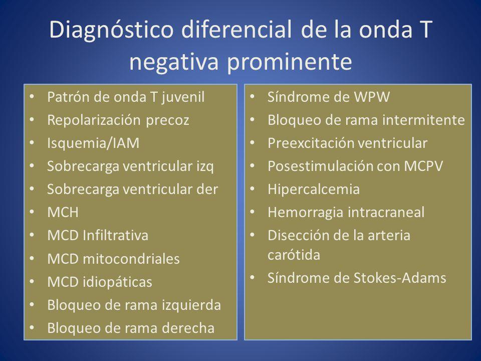 Diagnóstico diferencial de la onda T negativa prominente Patrón de onda T juvenil Repolarización precoz Isquemia/IAM Sobrecarga ventricular izq Sobrec