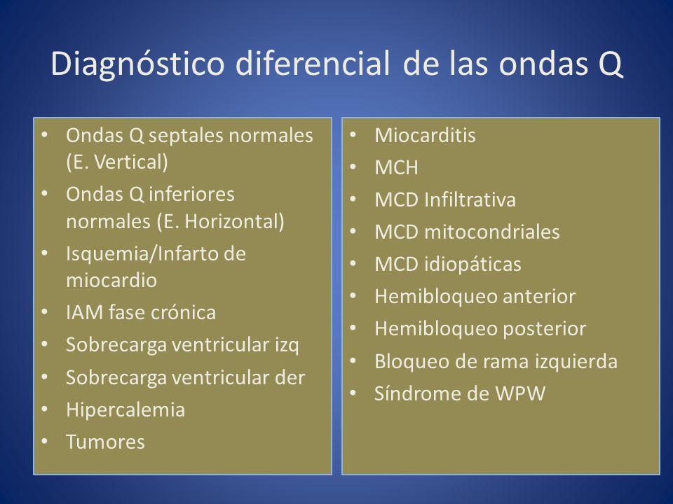 Diagnóstico diferencial de las ondas Q Ondas Q septales normales (E. Vertical) Ondas Q inferiores normales (E. Horizontal) Isquemia/Infarto de miocard