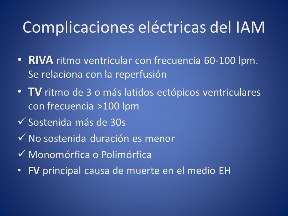 Complicaciones eléctricas del IAM RIVA RIVA ritmo ventricular con frecuencia 60-100 lpm. Se relaciona con la reperfusión TV TV ritmo de 3 o más latido