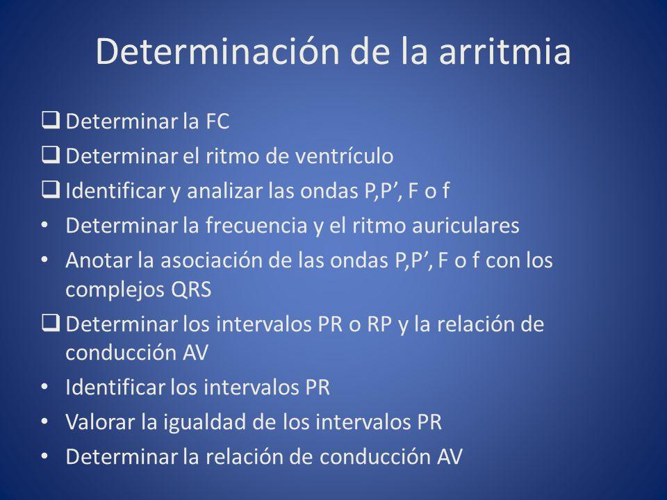 Determinación de la arritmia Determinar la FC Determinar el ritmo de ventrículo Identificar y analizar las ondas P,P, F o f Determinar la frecuencia y