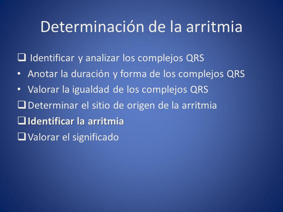 Determinación de la arritmia Identificar y analizar los complejos QRS Anotar la duración y forma de los complejos QRS Valorar la igualdad de los compl