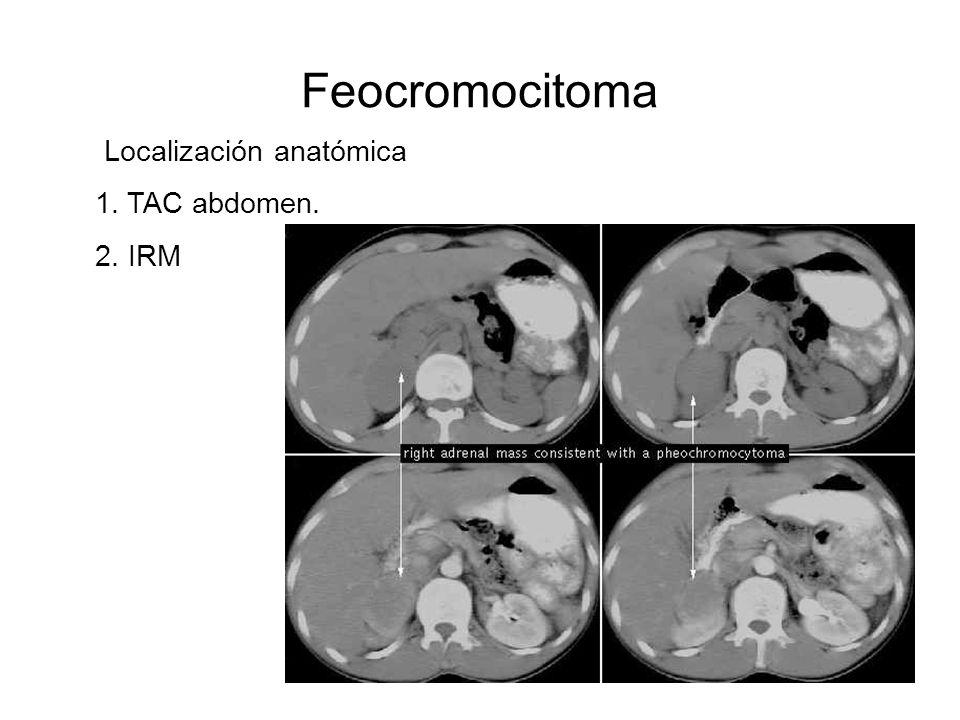 Localización anatómica 1. TAC abdomen. 2. IRM Feocromocitoma